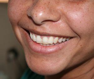 Uśmiech samo zdrowie | strefazdrowie.pl